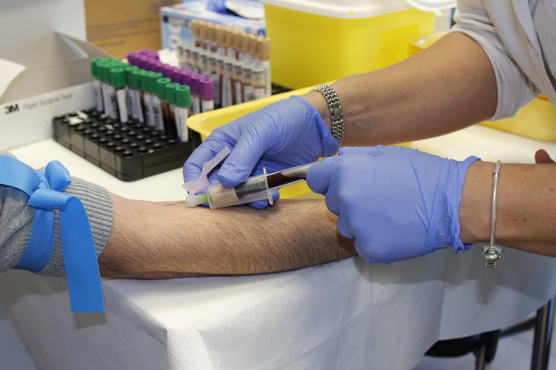 Jak a proč darovat krev