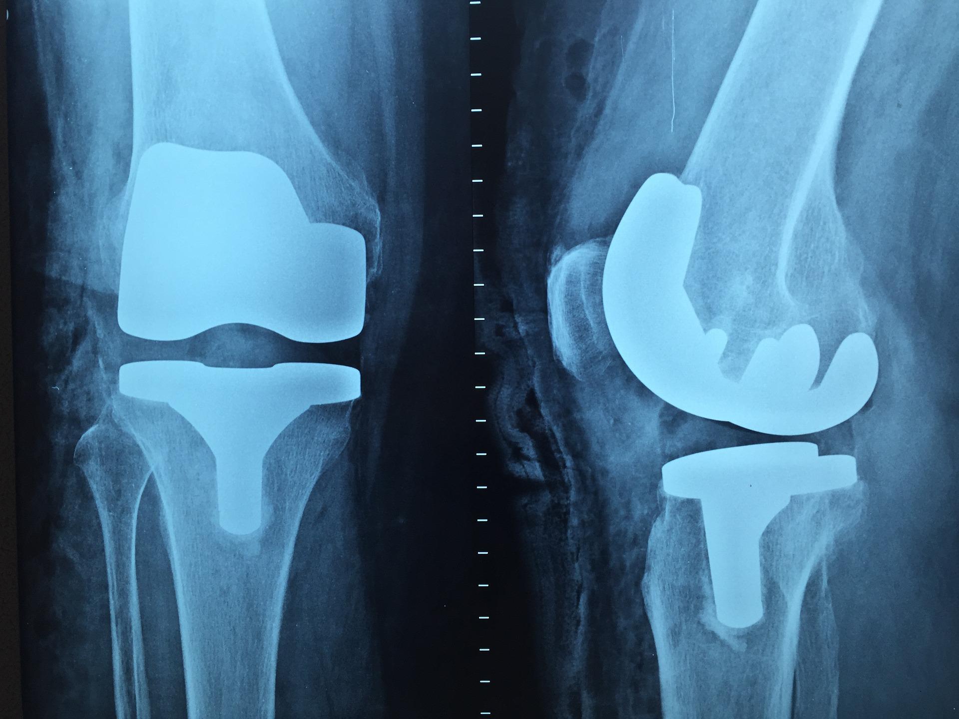 S bolestí zad a nohou na ortopedii