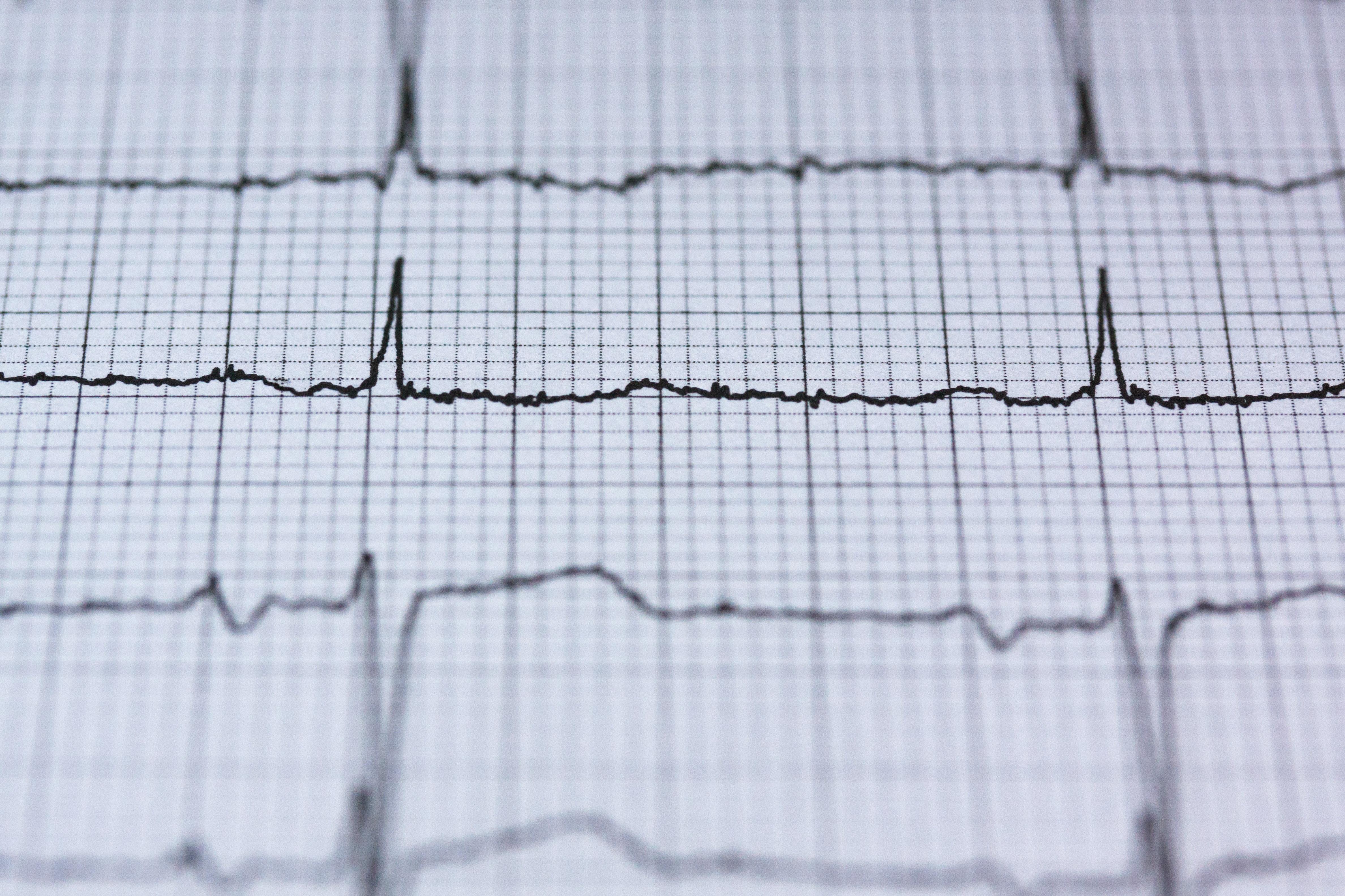Preventivní prohlídky na kardiologii vám mohou zachránit život